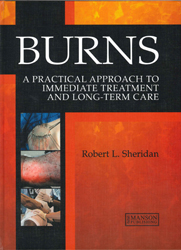 Image of Burns A Practical Approach To Immediate Treatment And Long Term Care