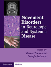 Image of Movement Disorders In Neurologic And Systemic Disease