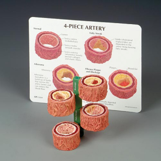 Image of Four-piece Artery Model