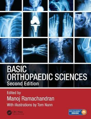 Image of Basic Orthopaedic Sciences : The Stanmore Guide