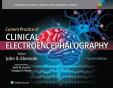 Image of Current Practice Of Clinical Electroencephalography