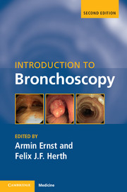 Image of Introduction To Bronchoscopy