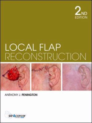Image of Local Flap Reconstruction