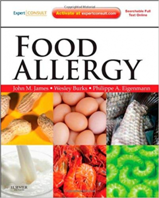 Image of Food Allergy