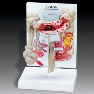 Image of Colon Model