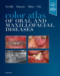 Image of Color Atlas Of Oral And Maxillofacial Diseases