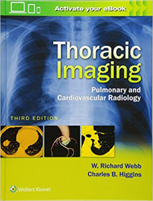 Image of Thoracic Imaging Pulmonary & Cardiovascular Radiology