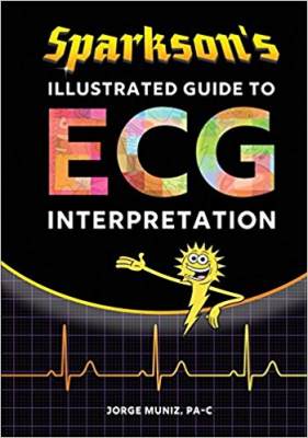 Image of Sparkson's Illustrated Guide To Ecg Interpretation