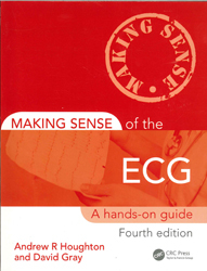Image of Making Sense Of The Ecg : A Hands On Guide