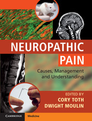 Image of Neuropathic Pain : Causes Management And Understanding