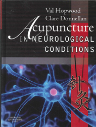 Image of Acupuncture In Neurological Conditions