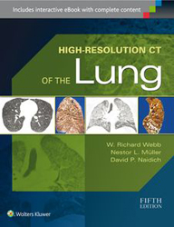 Image of High Resolution Ct Of The Lung