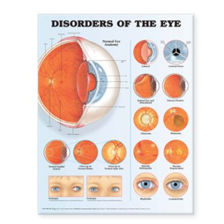 Image of Disorders Of The Eye - Anatomical Chart