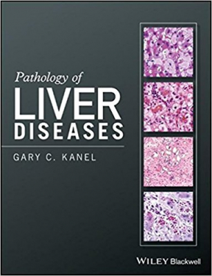 Image of Pathology Of Liver Diseases