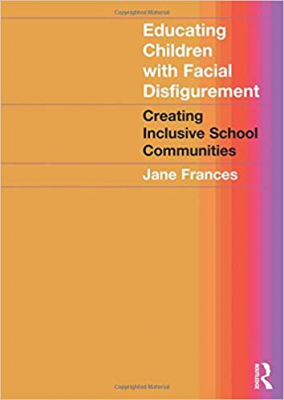 Image of Educating Children With Facial Disfigurement Creating Inclusive School Communities