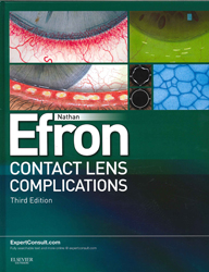 Image of Contact Lens Complications