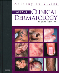 Image of Atlas Of Clinical Dermatology